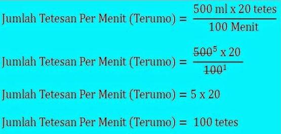 Cara Menghitung Tetesan Infus Mikro dan Makro